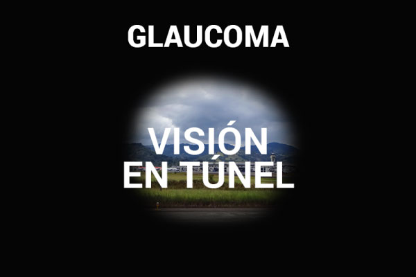 Glaucoma - Visión en tunel
