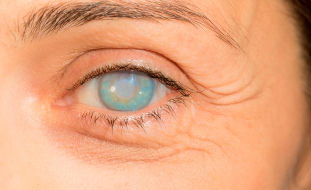 Manejo experto del Glaucoma