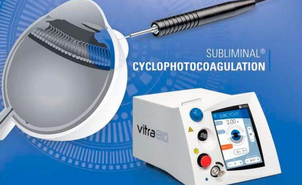 Láser Micropulsado para Glaucoma
