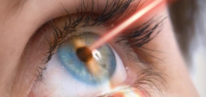láser para glaucoma en mérida